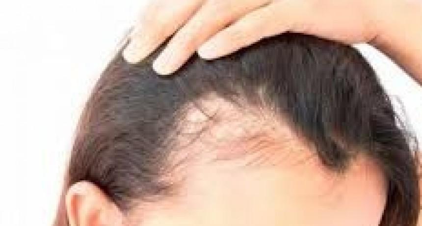 Caída de cabello en las mujeres: la mayoría de los casos tiene solución